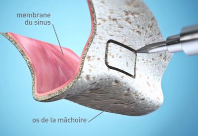 L-analyse-pre-implantaire-Dentiste Montélimar