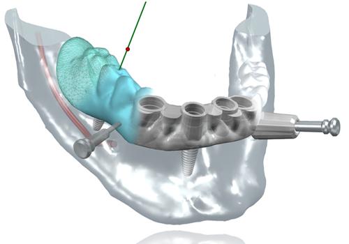 Chirurgie-guidee Dentiste Montélimar