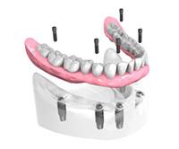 Mise-en-place-de-l-implant-dentaire Dentiste Montélimar