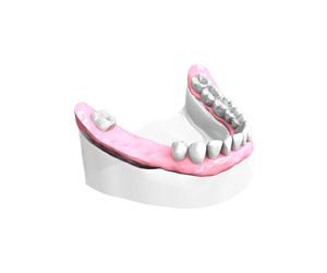 Examen-pre-implantaire Dentiste Montélimar
