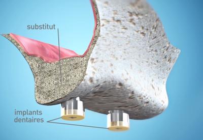 Greffe-osseuse-pre-implantaire Dentiste Montélimar