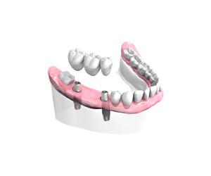 Pose-d-un-bridge-ceramique-sur-implants dentiste Montélimar