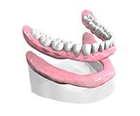 Appareil-resine-complet Dentiste Montélimar
