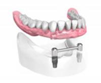 Appareil complet-sur-2-implants-dentaires Dentiste Montélimar