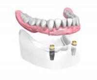 Appareil complet sur 2 implants dentaires et 2 boutons Dentiste Montélimar