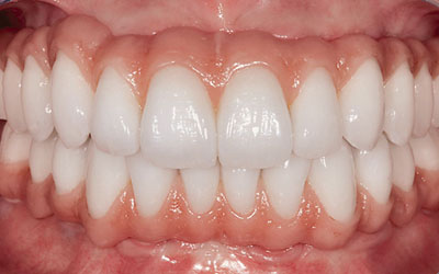 Bridge-complet-en-resine dentiste Montélimar