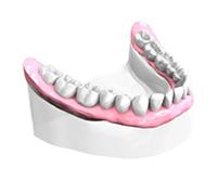 Sourire-retrouve-6 dentiste montélimar